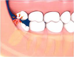 No pain teeth wisdom Is it
